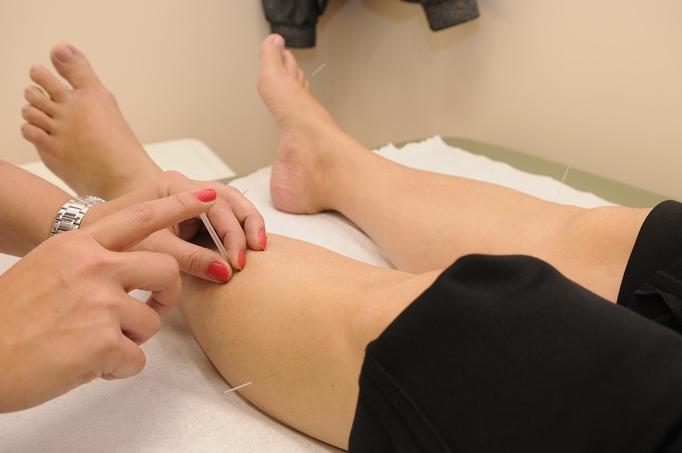 Puntos de acupuntura