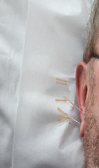 Tratamiento con acupuntura en oreja