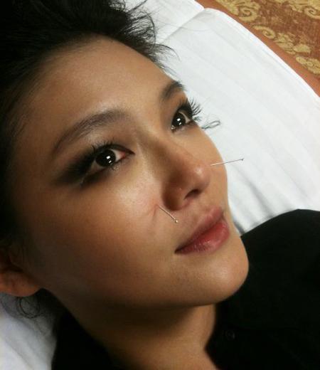 foto acupuntura facial