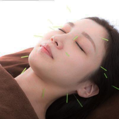 imagen de acupuntura facial